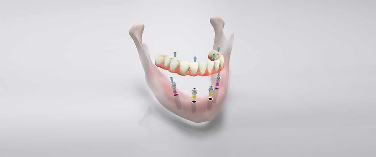 Das All-on-4-Konzept von CAMLOG: Comfour. Fest sitzende Zähne an einem Tag durch Implantate.