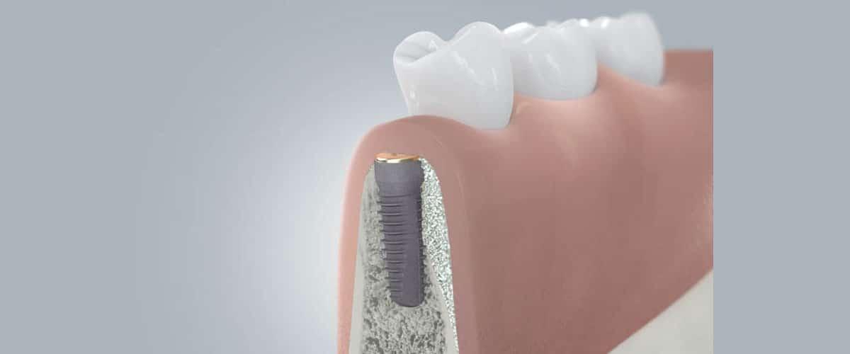 Lösungen durch Implantate in der Zahnarztpraxis drs. Kisters, Witten