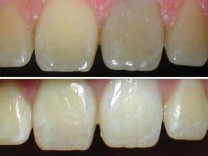 Bleaching in der Zahnarztpraxis drs. Kisters