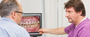 DIGITAL SMILE DESIGN – Schöne Zähne in der zahnarztpraxis Kisters, Witten