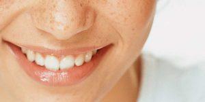 Parodontologie – Parodontose-Behandlung in der zahnarztpraxis Kisters, Witten