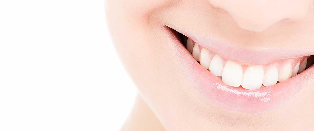 Ästetische Zahnmedizin – schöne Zähne in der Zahnarztpraxis Kisters in Witten