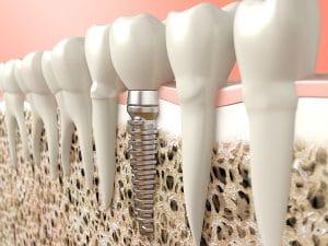 Zahnimplantate als fest verwurzelter Zahnersatz – Zahnarztpraxis Kisters in Witten