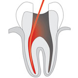 PACT-Laser zur Wurzelkanalbehandlung – Zahnarztpraxis Kisters, Witten