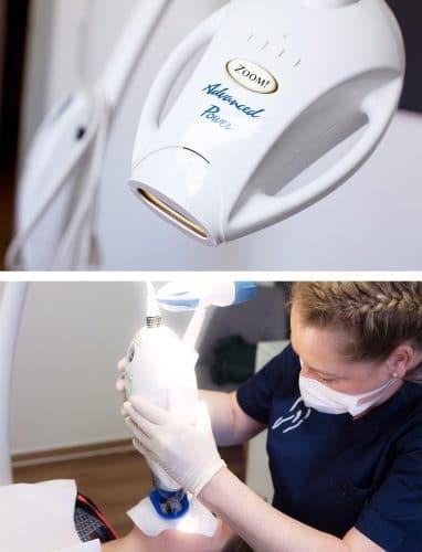 Bleaching in der Zahnarztpraxis Kisters, Witten