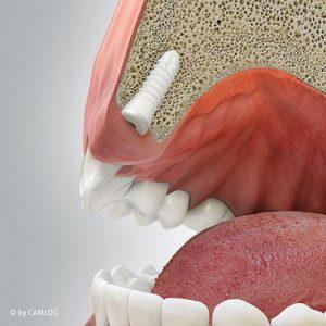 Einheilen des eingesetzten Implantats. Keramikimplantate: natürlicher und ästhetischer Zahnersatz aus Zirkonoxid. Zahnarztpraxis drs. Kisters, Witten