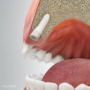 Ausformen des Zahnfleisches für einen natürlichen Verlauf und anatomischen Kronendurchtritt. Zahnarztpraxis drs. Kisters, Witten