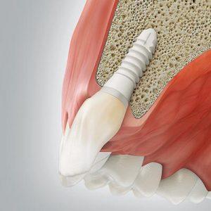 Zahnimplantat, Implantataufbau (Abutment) und Zahnkrone. Zahnarztpraxis drs. Kisters, Witten